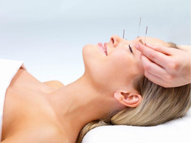 Ce este acupunctura?