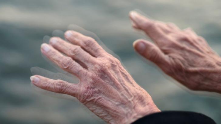 Ce este boala Parkinson?
