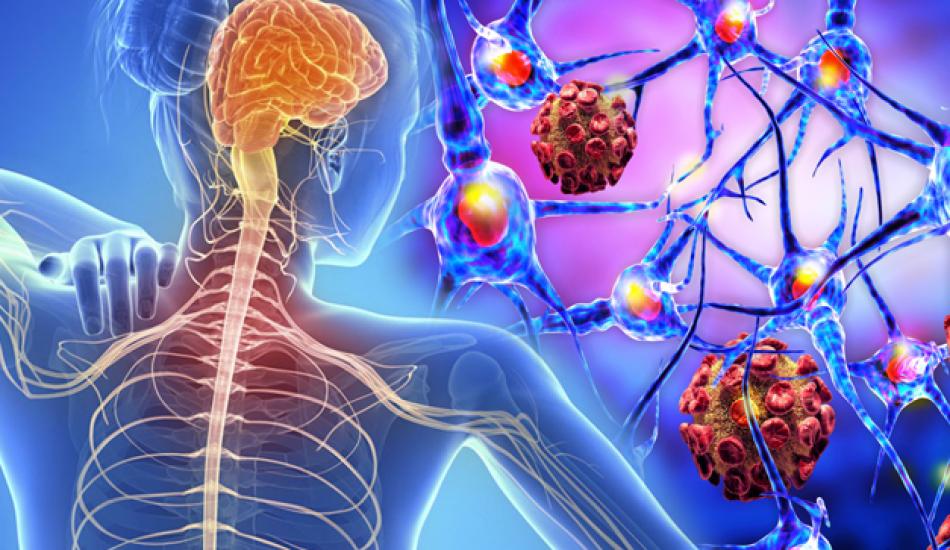 Ce este scleroza multipla?