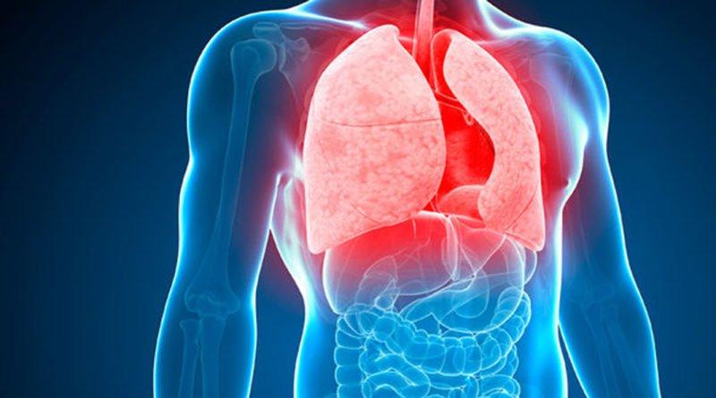 Ce este tuberculoza?